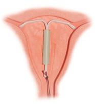 Внутриматочная спираль секс