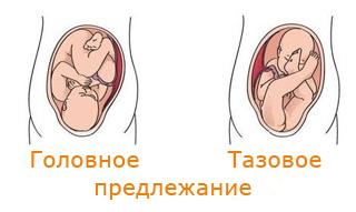 Тазовое предлежание плода тазобедренных суставов электрофорез локтевого сустава